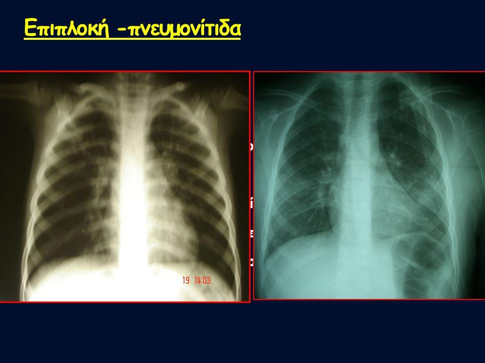 Επιπλοκή -πνευμονίτιδα