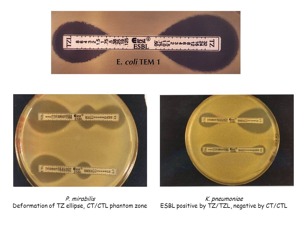 Deformation of TZ ellipse, CT/CTL phantom zone K. pneumoniae