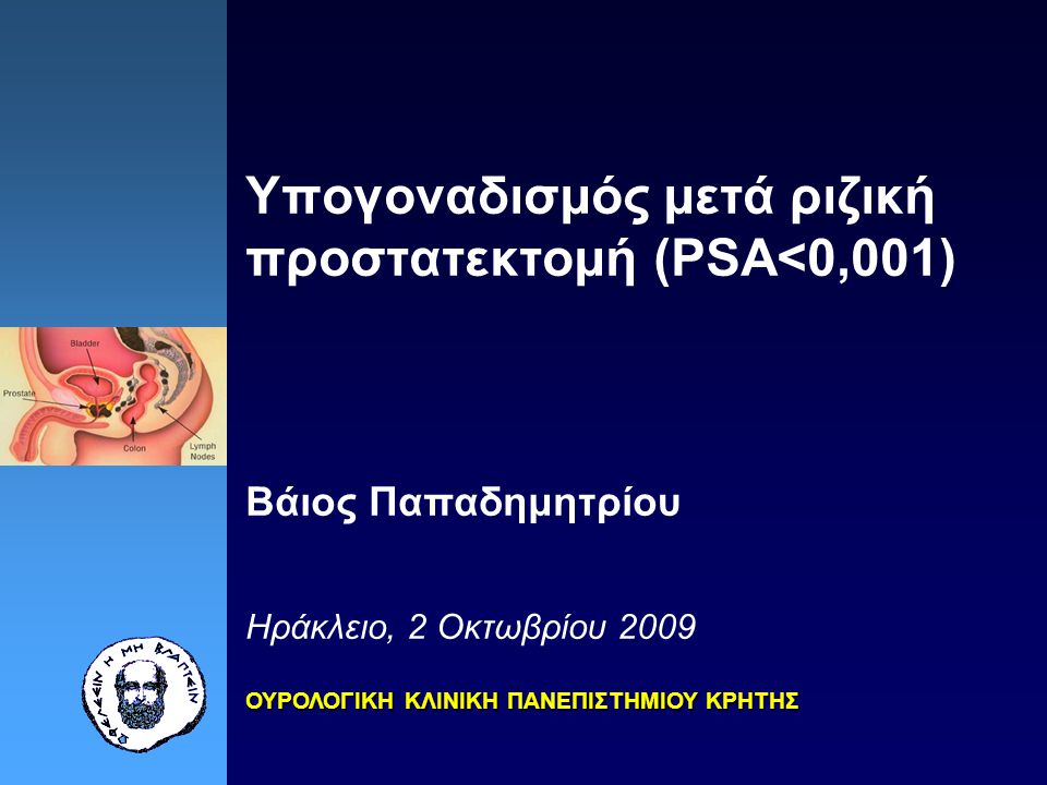 Υπογοναδισμός μετά ριζική προστατεκτομή (PSA<0,001) Βάιος Παπαδημητρίου Ηράκλειο, 2 Οκτωβρίου 2009