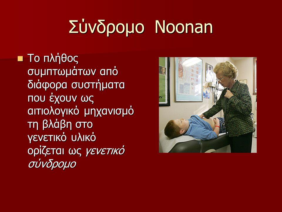 Σύνδρομο Noonan