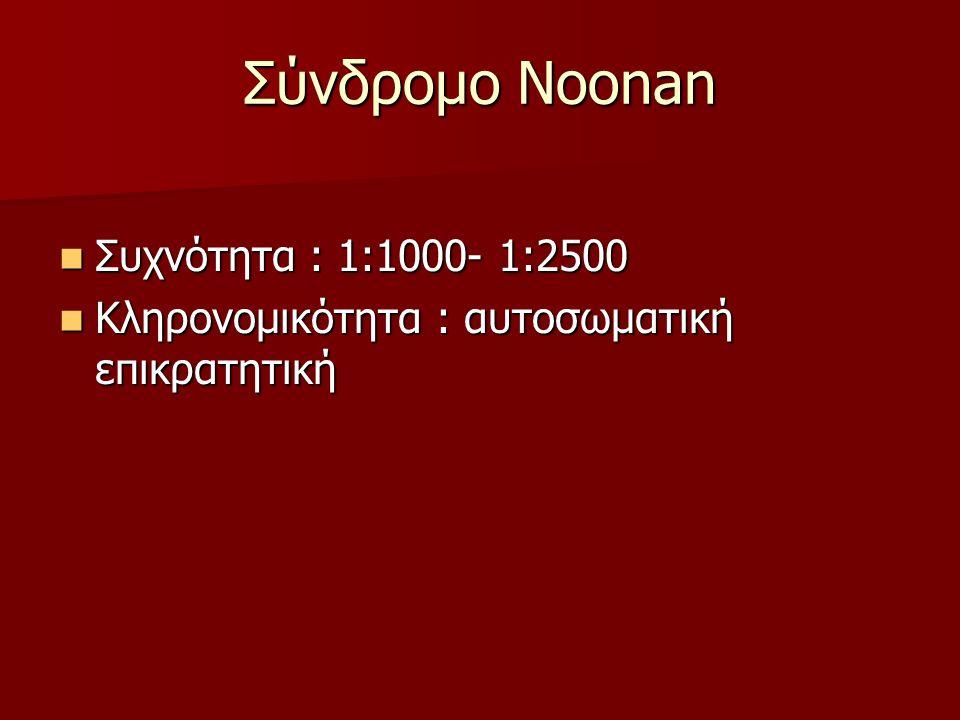 Σύνδρομο Noonan Συχνότητα : 1:1000- 1:2500