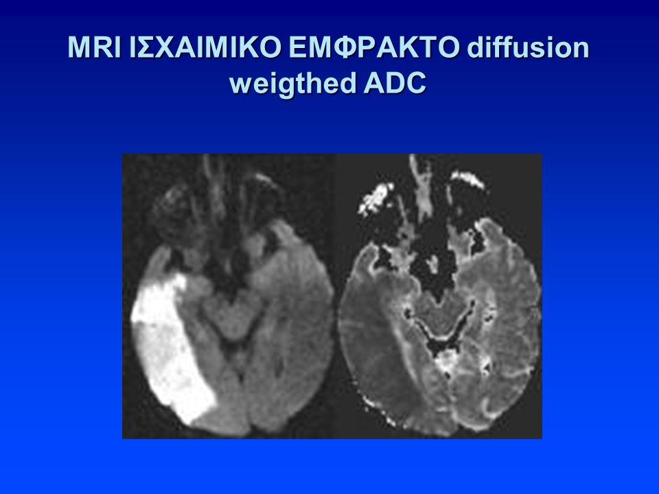 MRI ΙΣΧΑΙΜΙΚΟ ΕΜΦΡΑΚΤΟ diffusion weigthed ADC