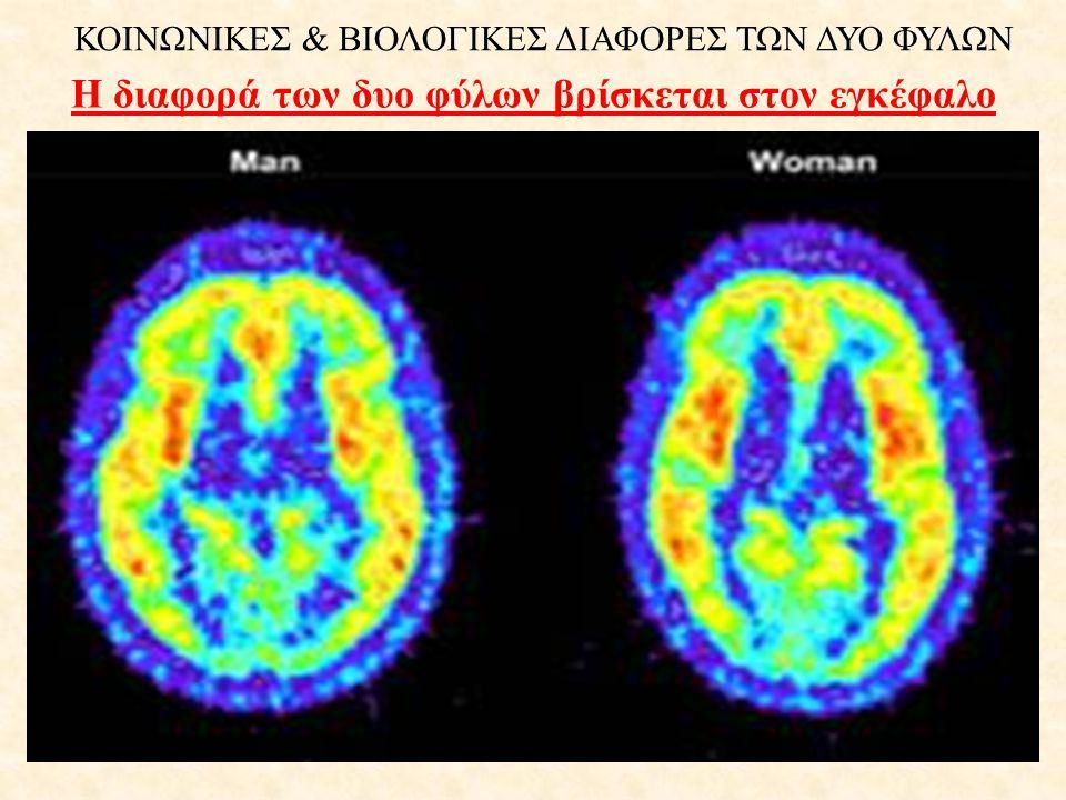 Η διαφορά των δυο φύλων βρίσκεται στον εγκέφαλο