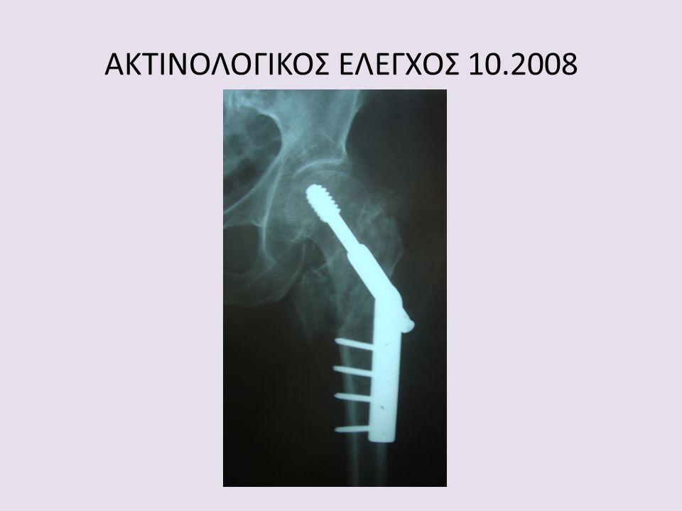 ΑΚΤΙΝΟΛΟΓΙΚΟΣ ΕΛΕΓΧΟΣ 10.2008