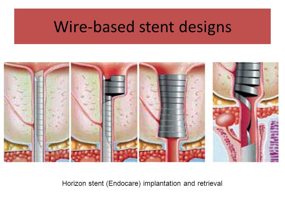 Wire-based stent designs