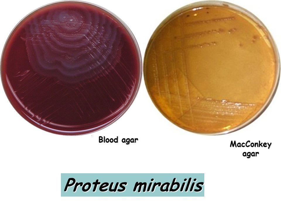 Blood agar MacConkey agar Proteus mirabilis
