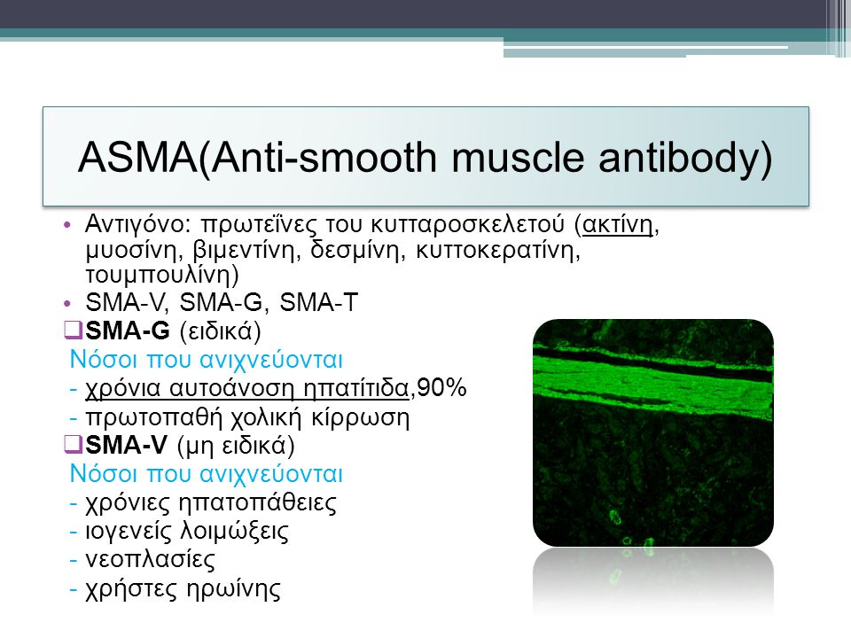 ASMA(Anti-smooth muscle antibody)