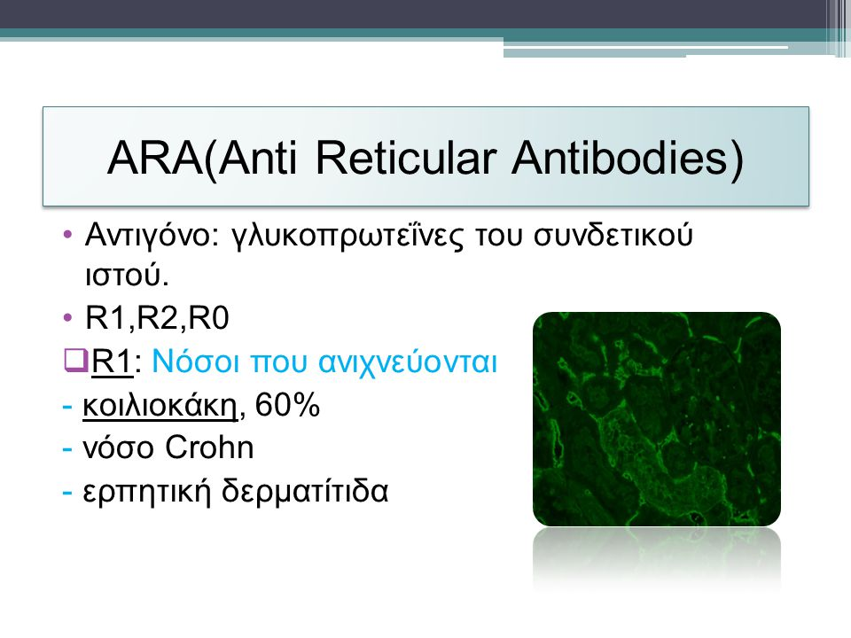 ARA(Anti Reticular Antibodies)