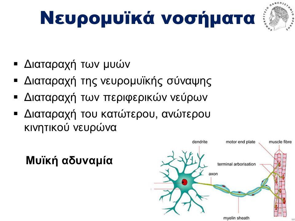 Νευρομυϊκά νοσήματα Διαταραχή των μυών