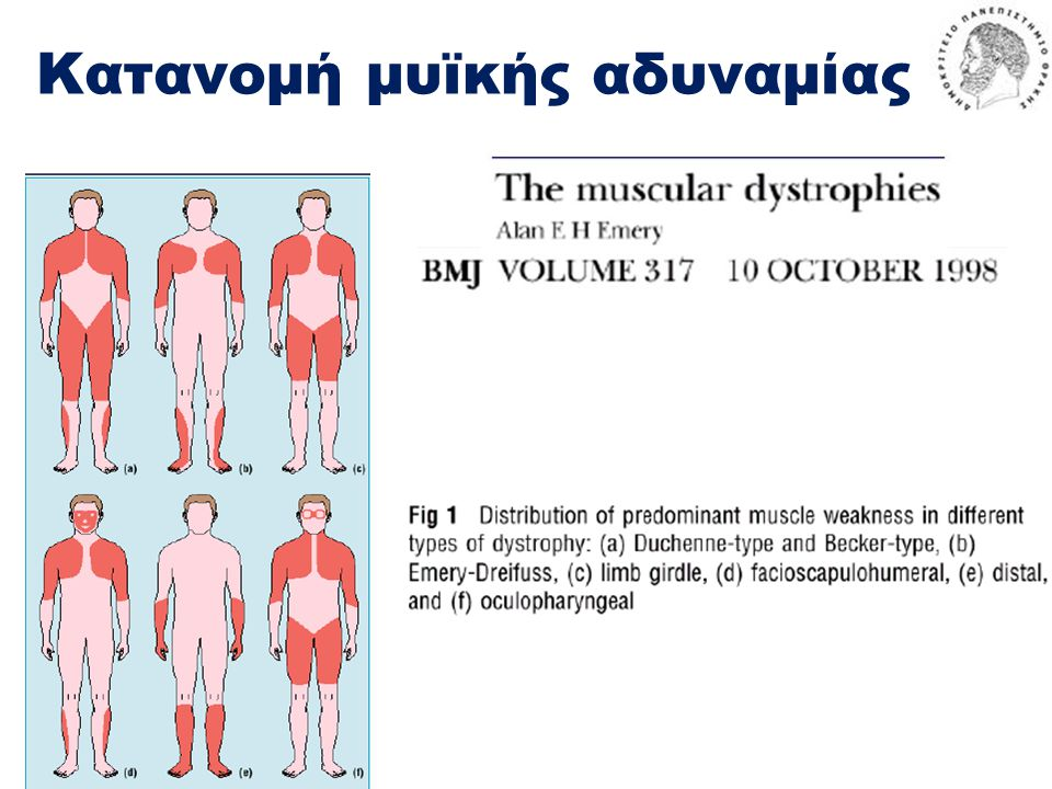 Κατανομή μυϊκής αδυναμίας