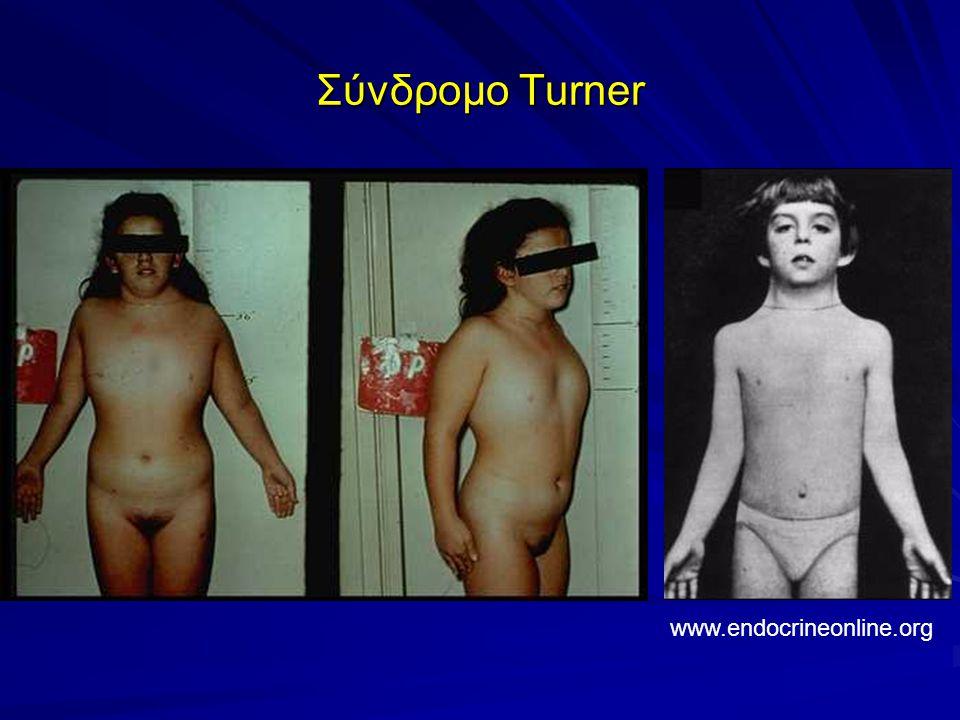 Σύνδρομο Turner www.endocrineonline.org