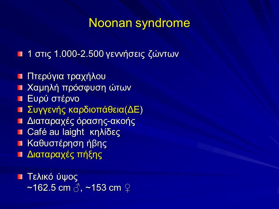 Noonan syndrome 1 στις 1.000-2.500 γεννήσεις ζώντων Πτερύγια τραχήλου