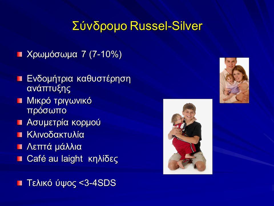 Σύνδρομο Russel-Silver