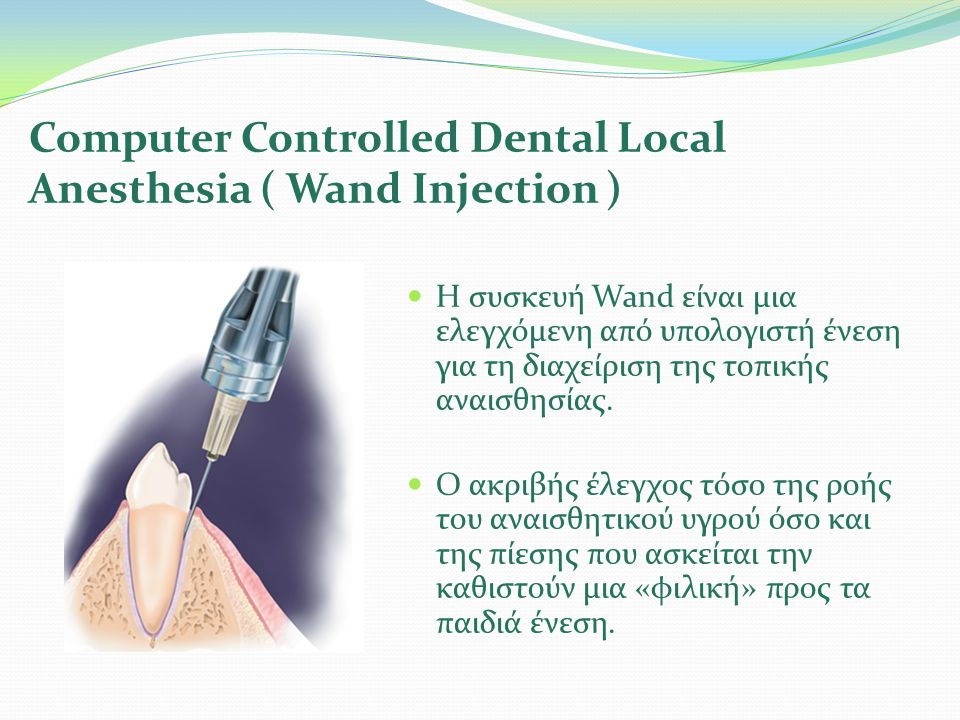 Computer Controlled Dental Local Anesthesia ( Wand Injection )