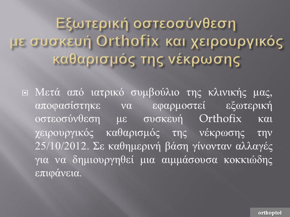 Εξωτερική οστεοσύνθεση με συσκευή Orthofix και χειρουργικός καθαρισμός της νέκρωσης