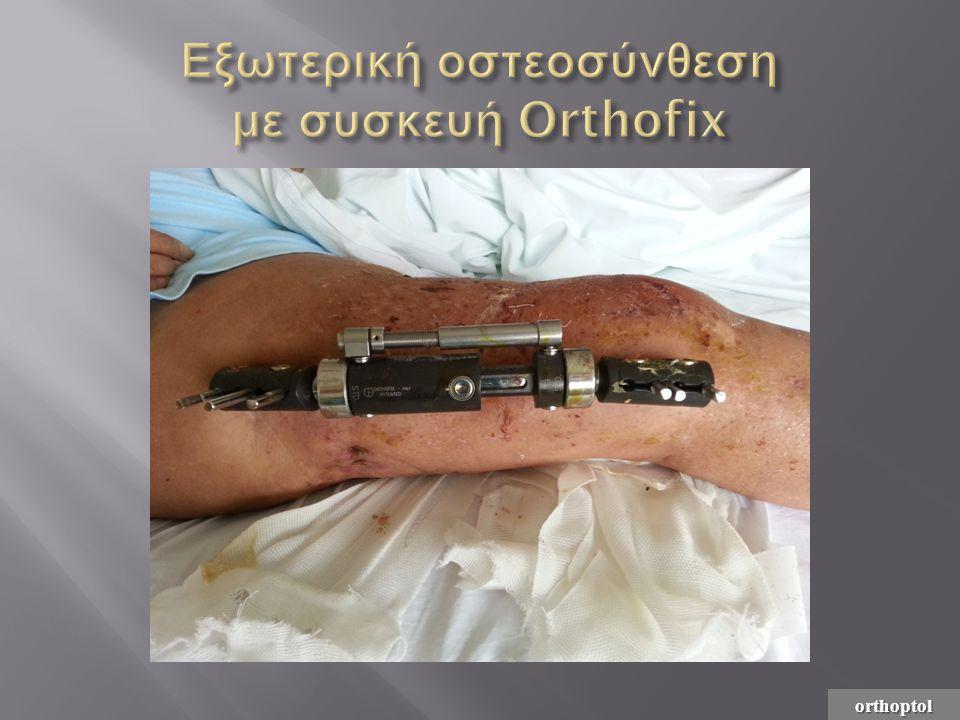 Εξωτερική οστεοσύνθεση με συσκευή Orthofix