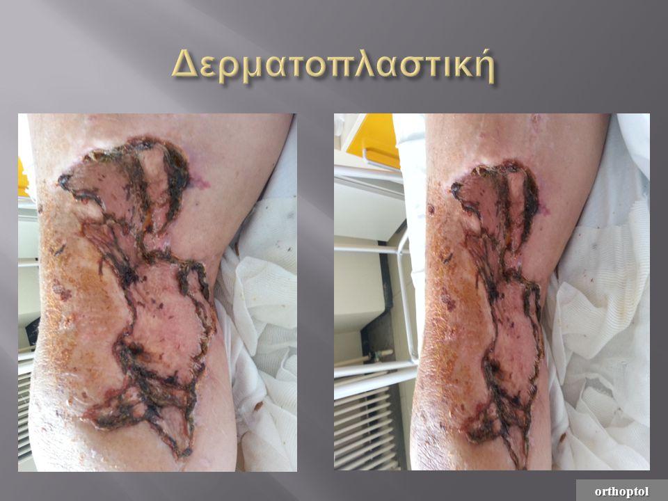Δερματοπλαστική orthoptol