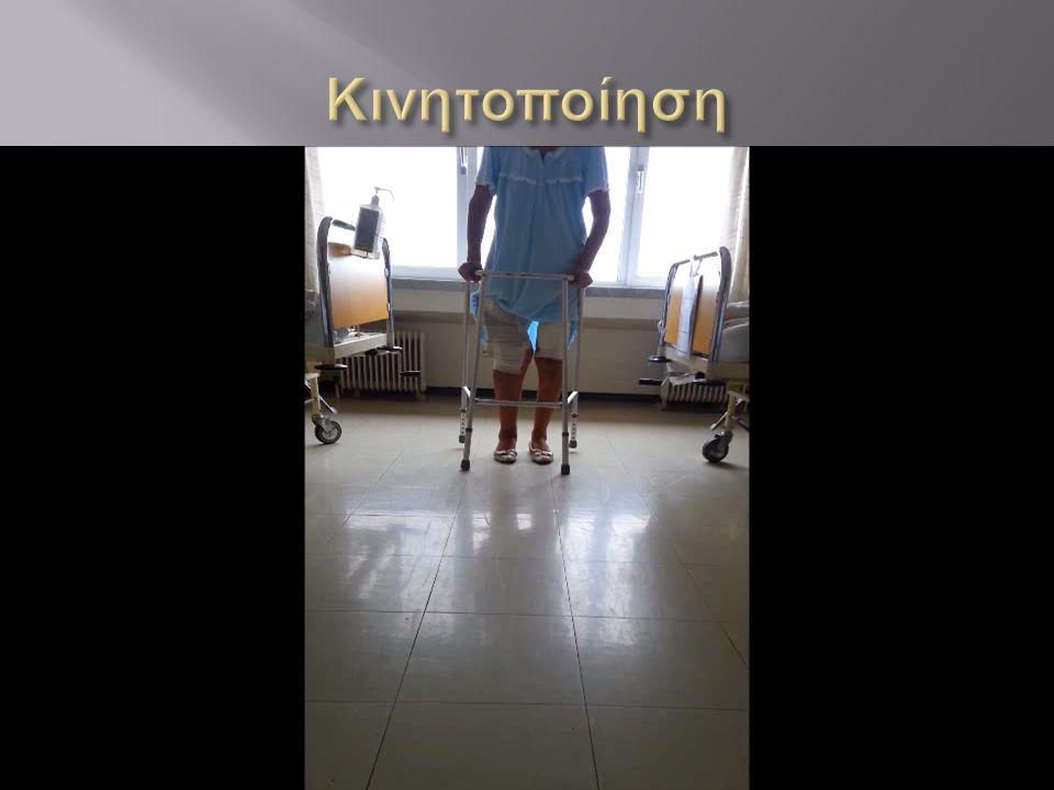 Κινητοποίηση orthoptol