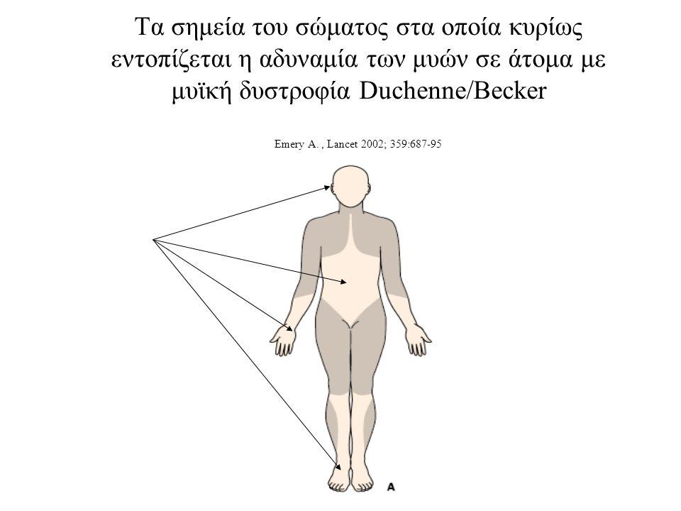 Τα σημεία του σώματος στα οποία κυρίως εντοπίζεται η αδυναμία των μυών σε άτομα με μυϊκή δυστροφία Duchenne/Becker Εmery A.