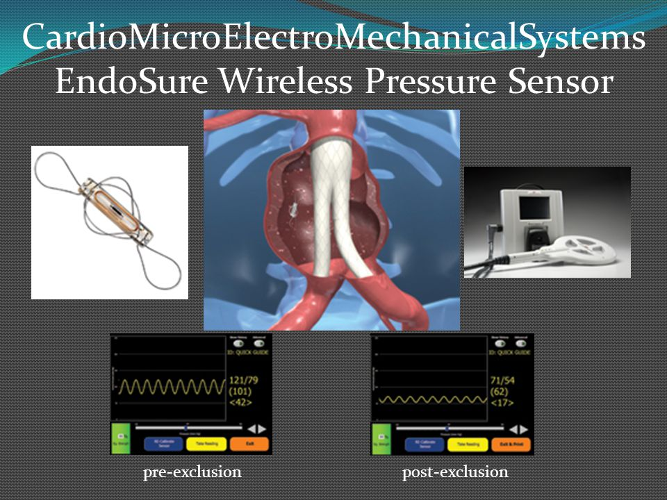CardioMicroElectroMechanicalSystems EndoSure Wireless Pressure Sensor