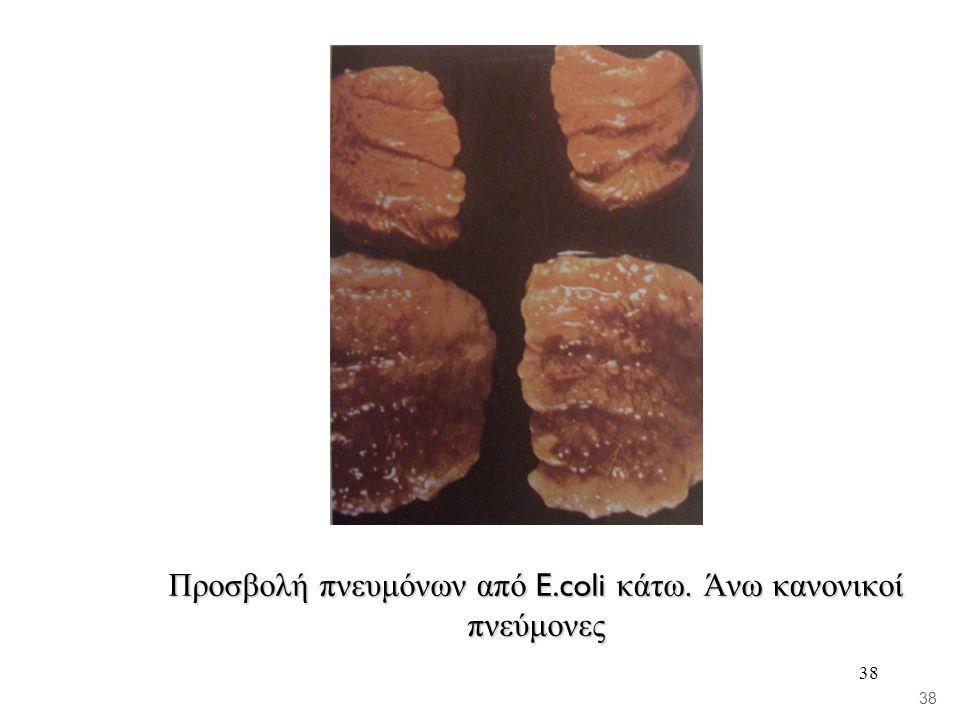 Προσβολή πνευμόνων από E.coli κάτω. Άνω κανονικοί πνεύμονες