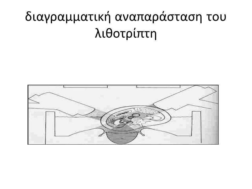 διαγραμματική αναπαράσταση του λιθοτρίπτη