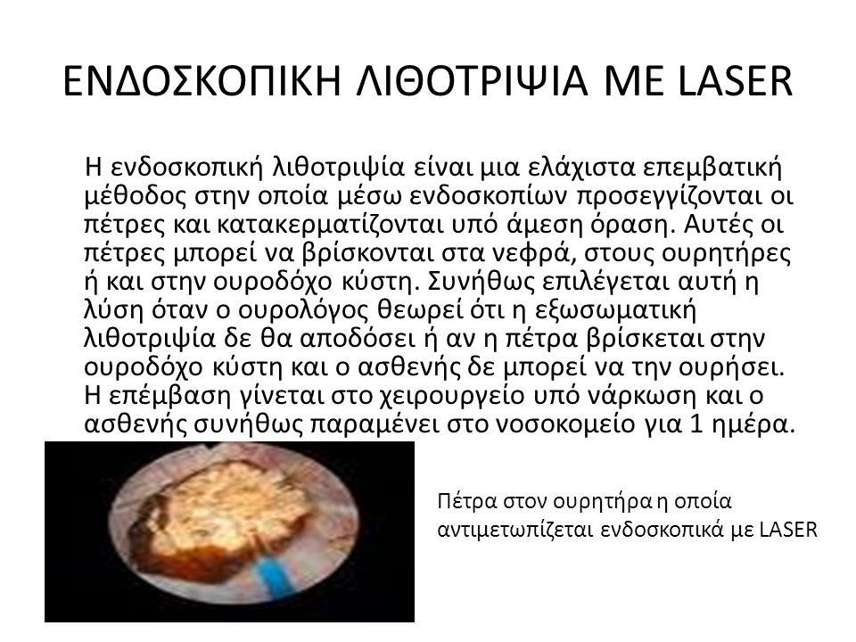 ΕΝΔΟΣΚΟΠΙΚΗ ΛΙΘΟΤΡΙΨΙΑ ΜΕ LASER