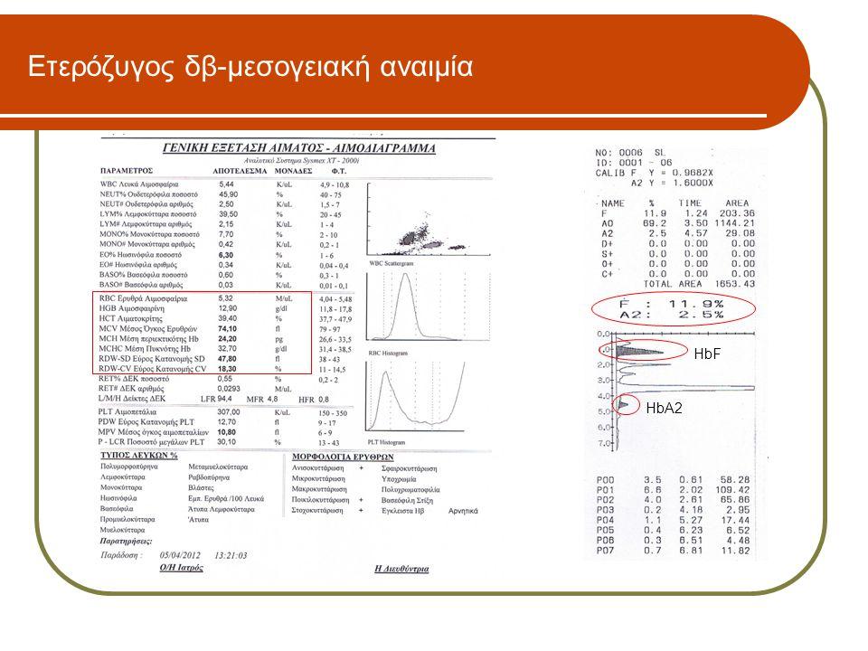 Ετερόζυγος δβ-μεσογειακή αναιμία