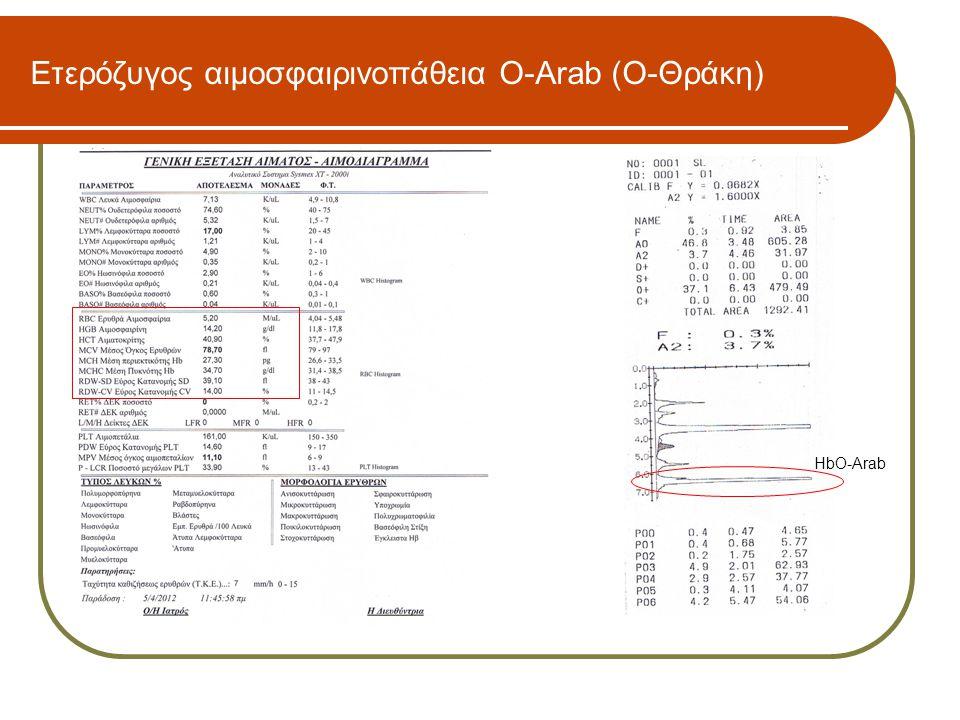 Ετερόζυγος αιμοσφαιρινοπάθεια O-Arab (Ο-Θράκη)