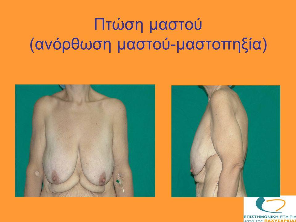 Πτώση μαστού (ανόρθωση μαστού-μαστοπηξία)