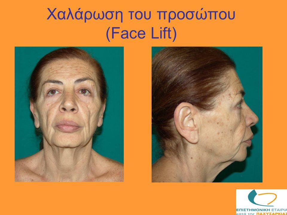 Χαλάρωση του προσώπου (Face Lift)