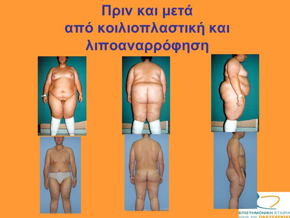 Πριν και μετά από κοιλιοπλαστική και λιποαναρρόφηση