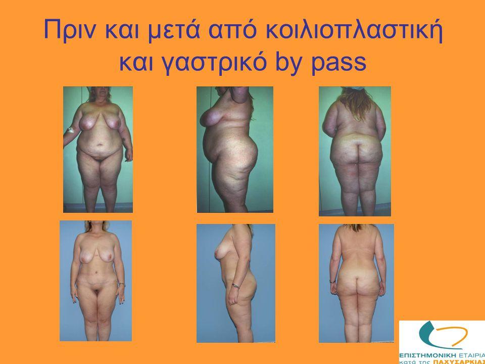 Πριν και μετά από κοιλιοπλαστική και γαστρικό by pass