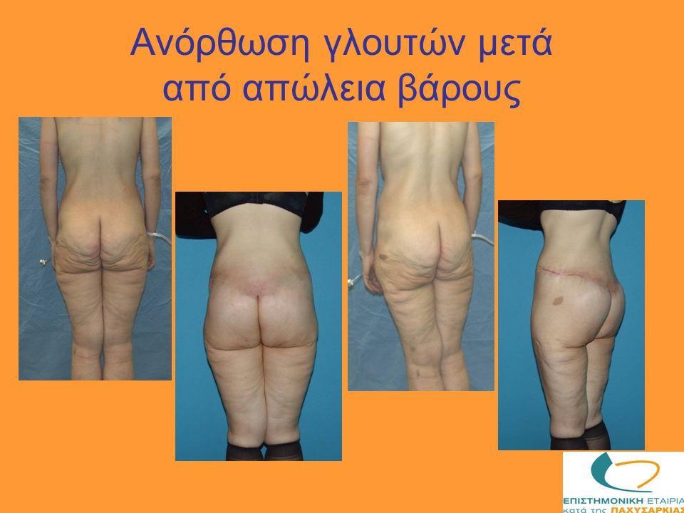 Ανόρθωση γλουτών μετά από απώλεια βάρους