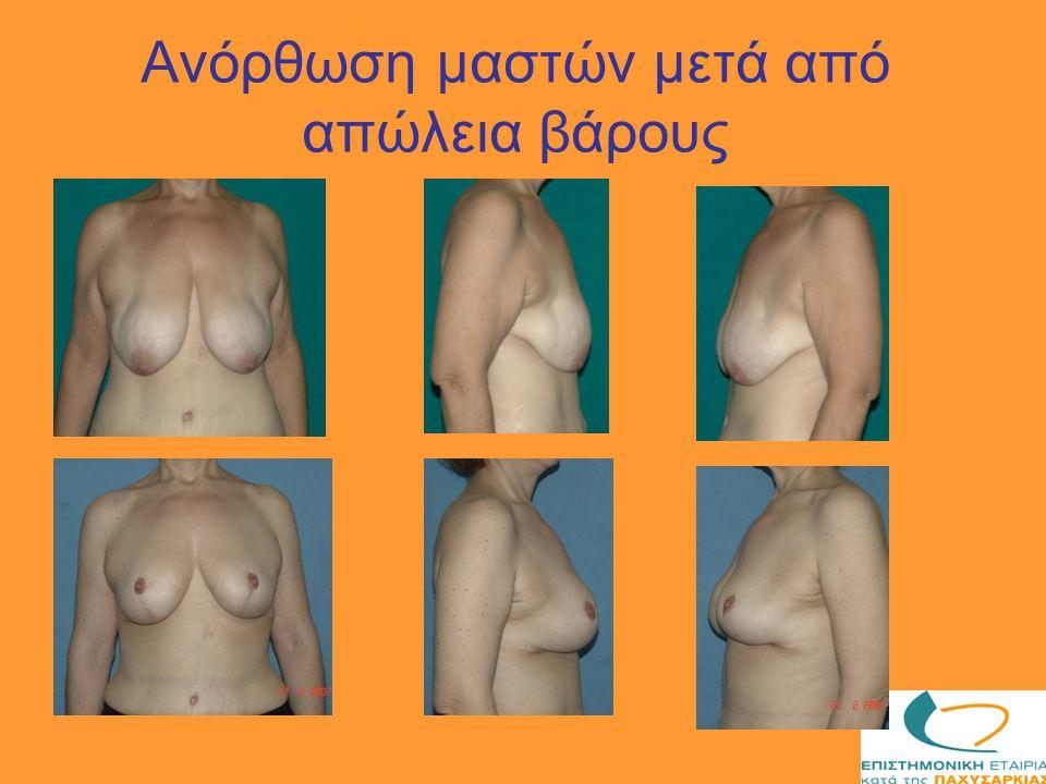 Ανόρθωση μαστών μετά από απώλεια βάρους
