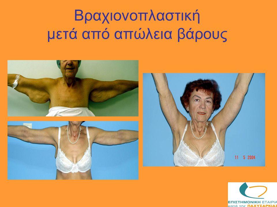 Βραχιονοπλαστική μετά από απώλεια βάρους
