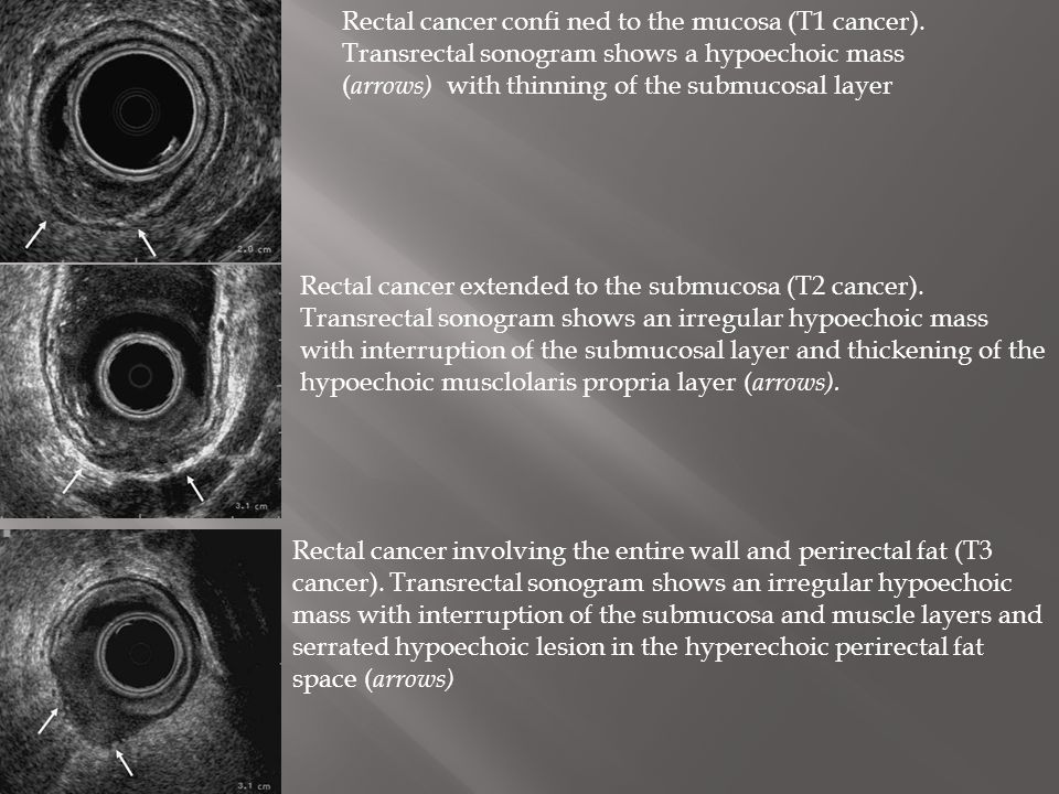 Rectal cancer confi ned to the mucosa (T1 cancer).