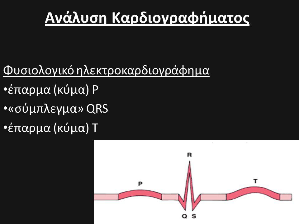 Ανάλυση Καρδιογραφήματος