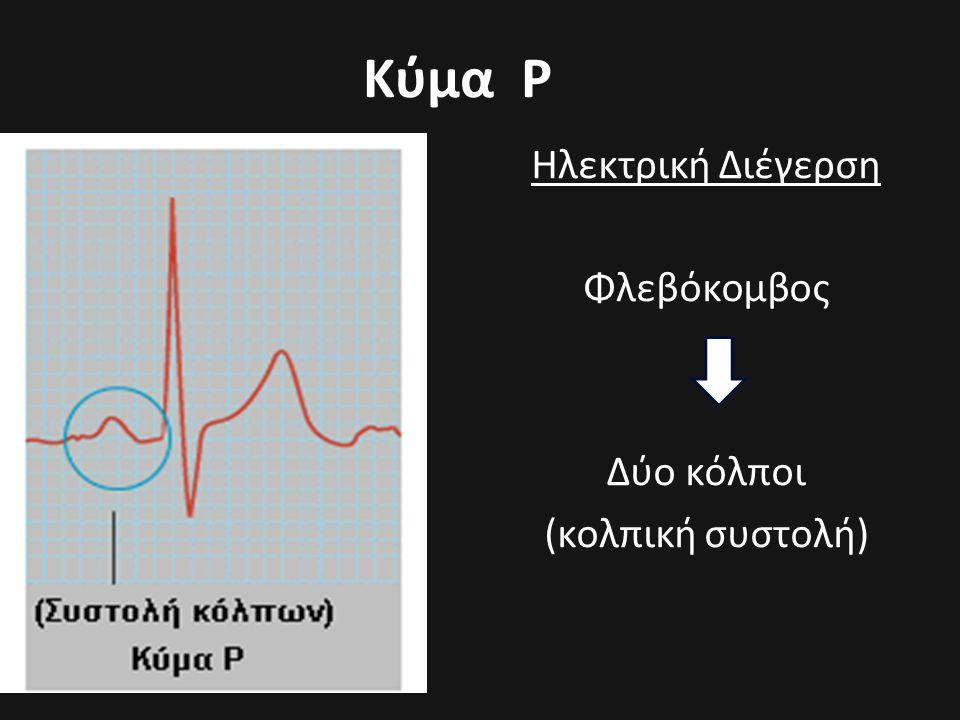 Ηλεκτρική Διέγερση Φλεβόκομβος Δύο κόλποι (κολπική συστολή)