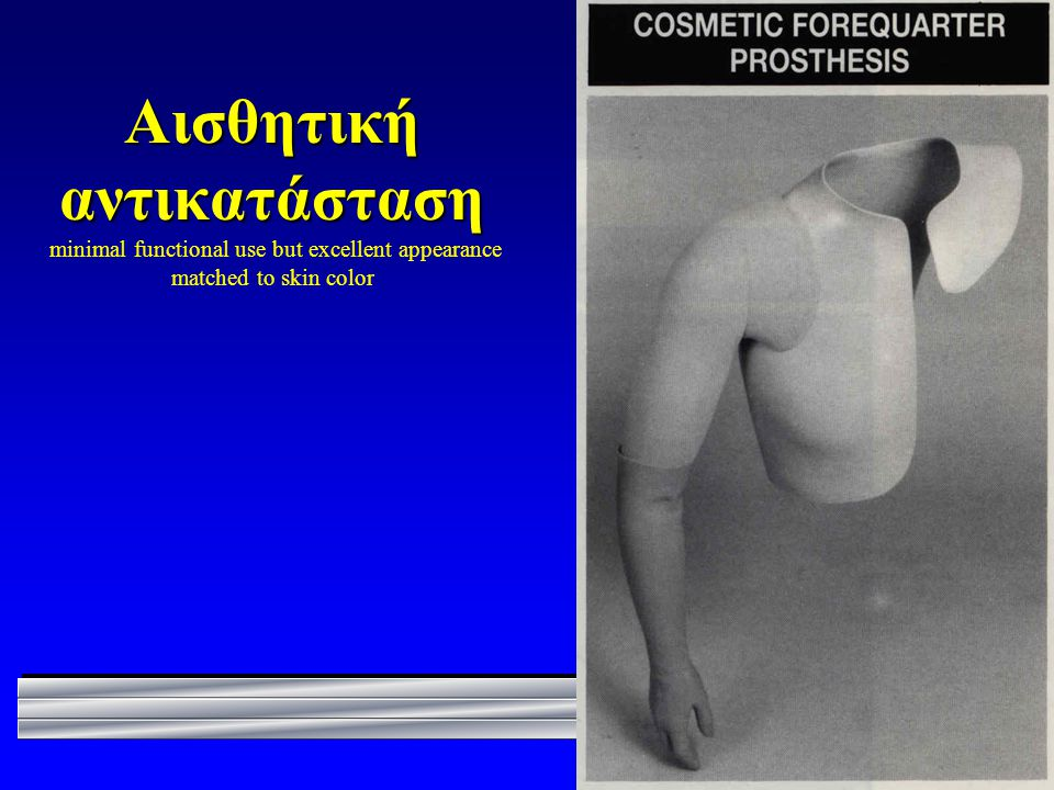 Αισθητική αντικατάσταση minimal functional use but excellent appearance matched to skin color