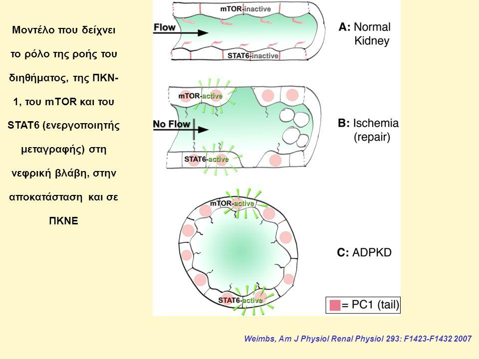 Μοντέλο που δείχνει το ρόλο της ροής του διηθήματος, της ΠΚΝ-1, του mTOR και του STAT6 (ενεργοποιητής μεταγραφής) στη νεφρική βλάβη, στην αποκατάσταση και σε ΠΚΝΕ