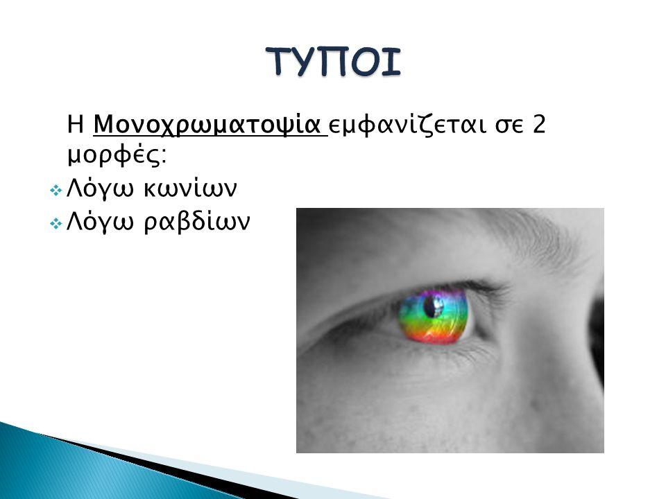 ΤΥΠΟΙ Η Μονοχρωματοψία εμφανίζεται σε 2 μορφές: Λόγω κωνίων