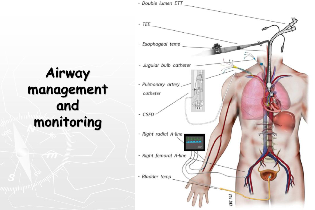 Airway management and monitoring