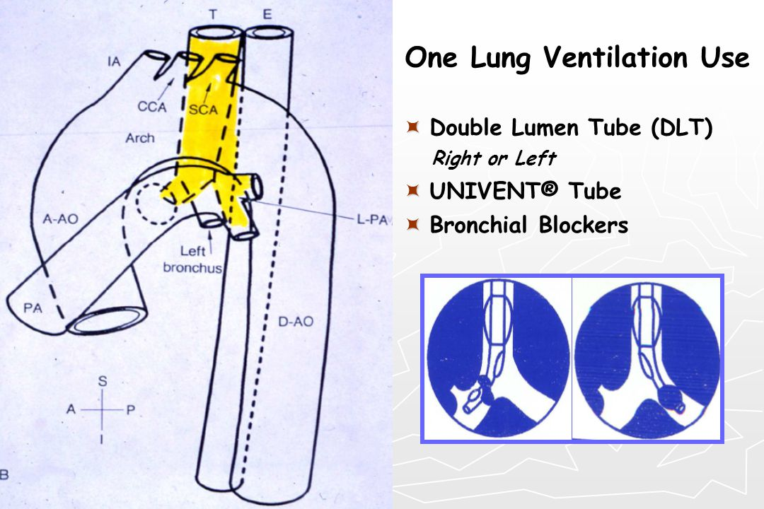 One Lung Ventilation Use