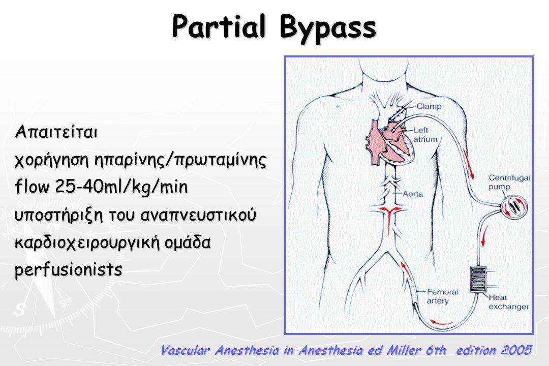 Partial Bypass Απαιτείται χορήγηση ηπαρίνης/πρωταμίνης flow 25-40ml/kg/min υποστήριξη του αναπνευστικού καρδιοχειρουργική ομάδα perfusionists