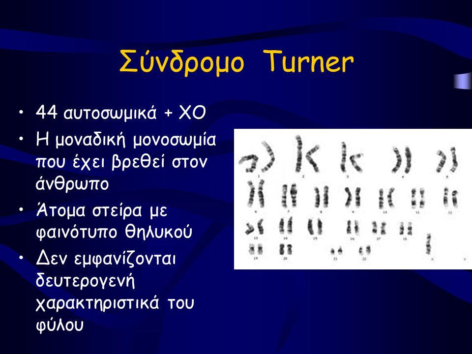 Σύνδρομο Τurner 44 αυτοσωμικά + ΧΟ