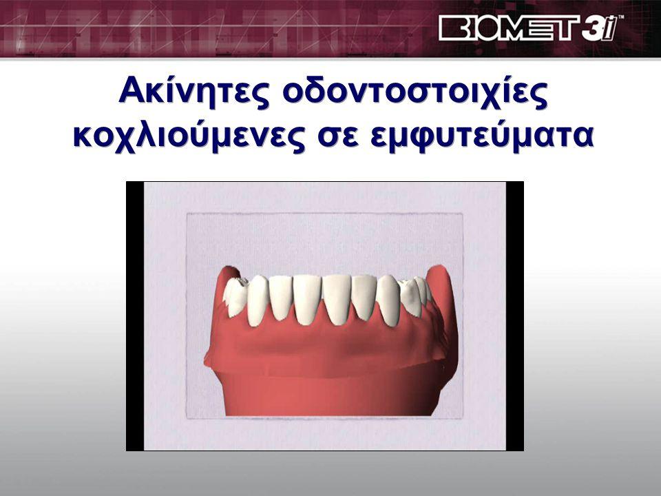 Ακίνητες οδοντοστοιχίες κοχλιούμενες σε εμφυτεύματα