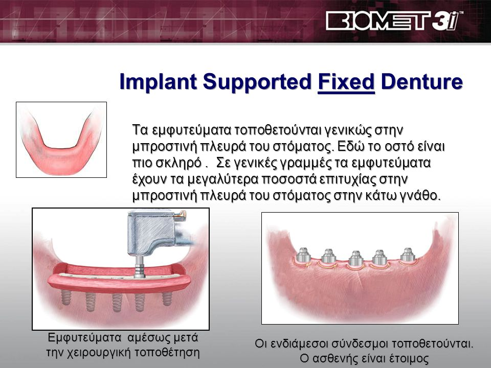Implant Supported Fixed Denture