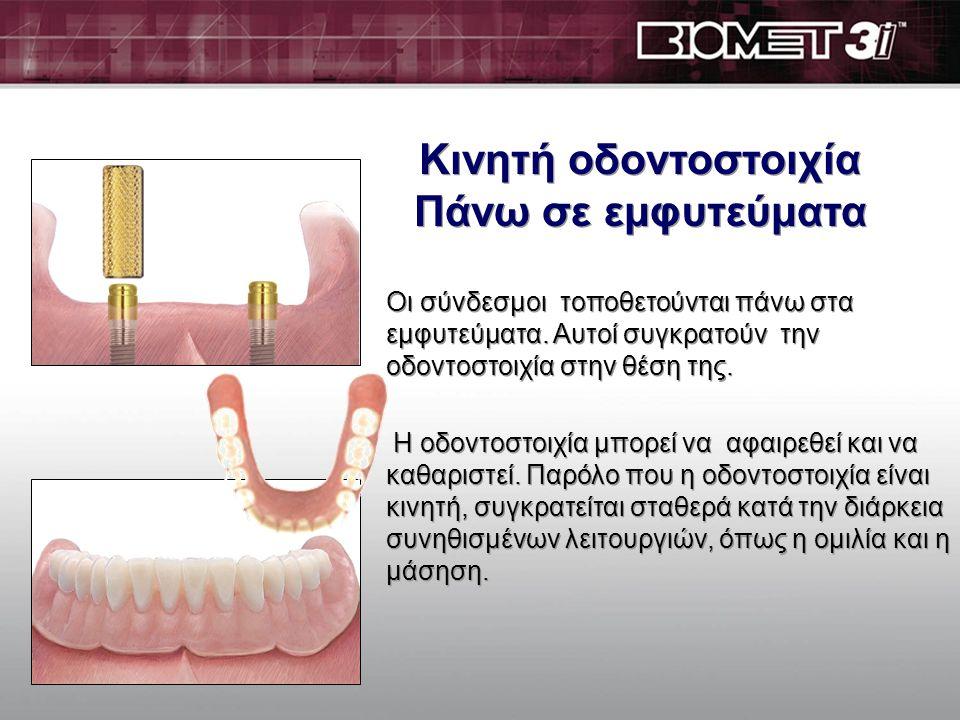 Κινητή οδοντοστοιχία Πάνω σε εμφυτεύματα