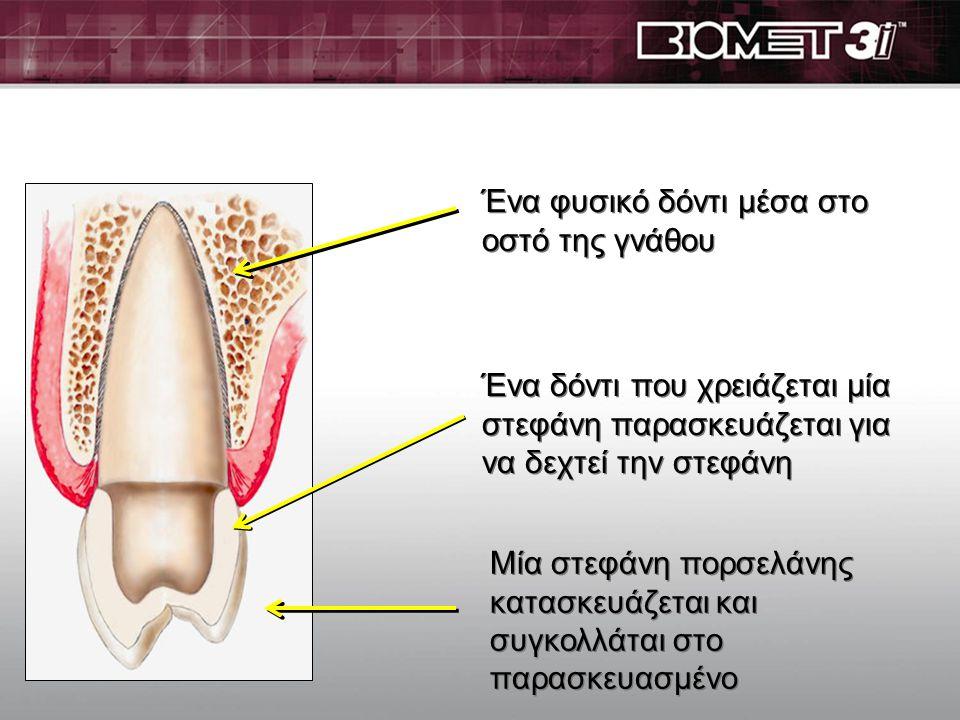 Ένα φυσικό δόντι μέσα στο οστό της γνάθου